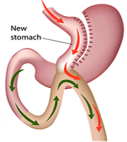 One Anastamosis Gastric Bypass